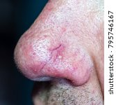 demodecosis of the face.... | Shutterstock . vector #795746167