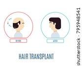 hair transplantation... | Shutterstock .eps vector #795948541