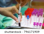 blood collection in lab for... | Shutterstock . vector #796171909
