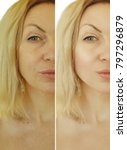 face woman wrinkles before and... | Shutterstock . vector #797296879