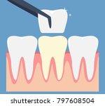 dental veneer concept | Shutterstock .eps vector #797608504