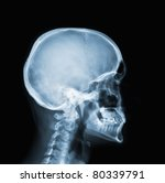 x ray of head    many others x... | Shutterstock . vector #80339791