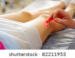 varicose laser treatment on...   Shutterstock . vector #82211953