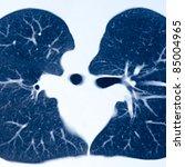 x-ray of human lumbar bone - stock photo