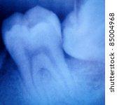 dental tooth x-ray film macro - stock photo