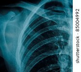 x-ray of chest of human - stock photo