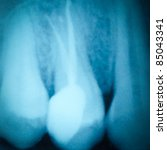 dental tooth x-ray film of root canal therapy - stock photo
