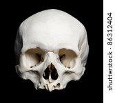 Real Human Skull. Upper Half....