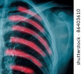 x-ray of chest hone of human - stock photo