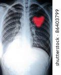 x-ray heart of human - stock photo