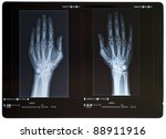 x ray of hands. female. | Shutterstock . vector #88911916