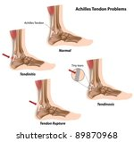achilles  calcaneal  tendon... | Shutterstock .eps vector #89870968