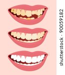 progressive stages of tooth... | Shutterstock .eps vector #90059182