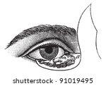 blepharoplasty by the method of ... | Shutterstock .eps vector #91019495