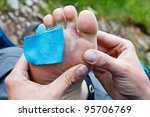 A hiker is inspecting a foot blister. - stock photo