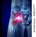 hip pain as an inflamed joint... | Shutterstock . vector #96831577