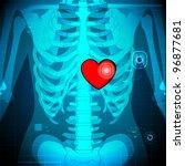 illustration of xray of human showing glowing heart behind rib - stock vector