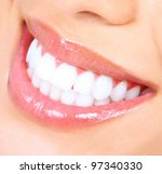 woman smile. teeth whitening.... | Shutterstock . vector #97340330