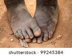Stock photo feet 99245384