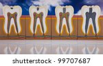 anatomy of the tooth | Shutterstock . vector #99707687
