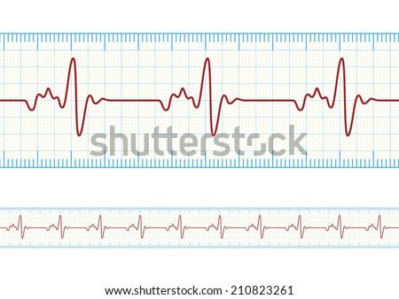vector electrocardiography