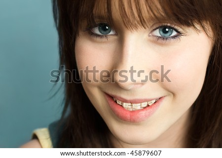 Beautiful young teenager with braces on her teeth, smiling happy - stock photo