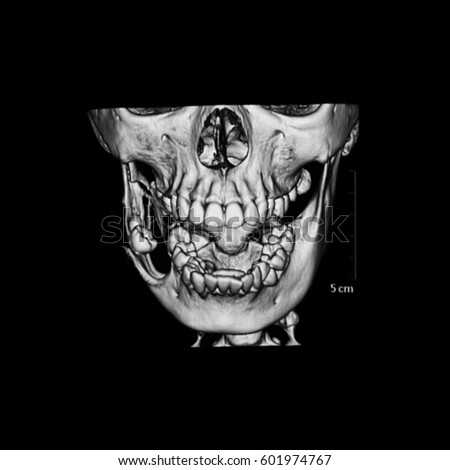 Ct Scan Dental Mandible Case Keratocystic Stock Photo (Download Now ...