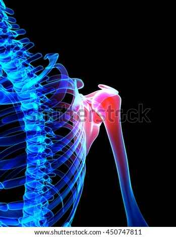 3D illustration, shoulder painful skeleton x-ray, medical concept. - stock photo