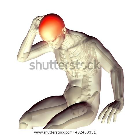 3d medical illustration headache,migraine,stress - stock photo