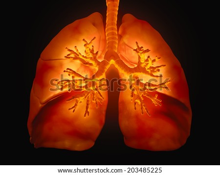 3D medical illustration - lungs with visible bronchi - stock photo