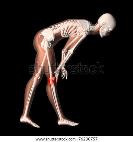 3D render of female medical skeleton with knee pain highlighted - stock photo