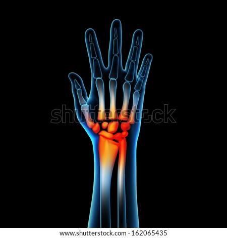 3d rendered anatomy illustration - hand pain - stock photo