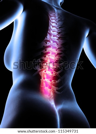 3d rendered anatomy illustration of painful back - stock photo