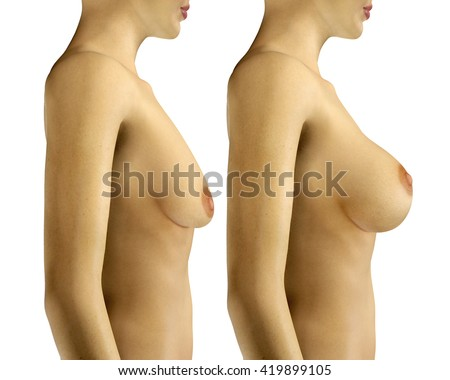 Consider, that enlarging mens breast