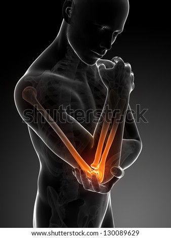 3d rendered illustration of pain in the elbow - stock photo