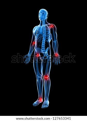 3d rendered illustration of painful joints - stock photo