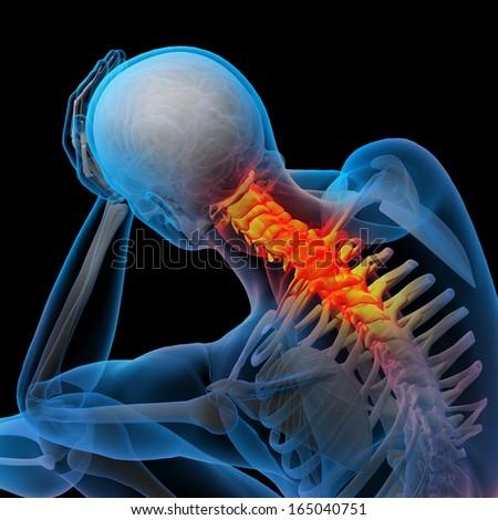 3d rendered illustration - pain neck - stock photo