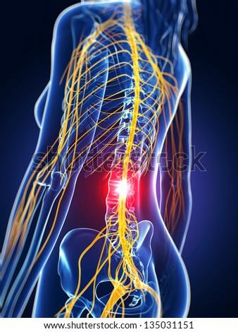 3d rendered medical illustration - backache - stock photo
