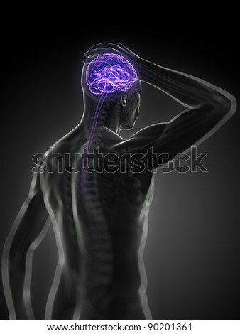 3d rendered, medical illustration - headache - stock photo