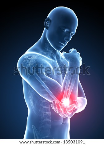 3d rendered medical illustration - painful elbow - stock photo