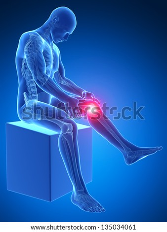 3d rendered medical illustration - painful knee - stock photo