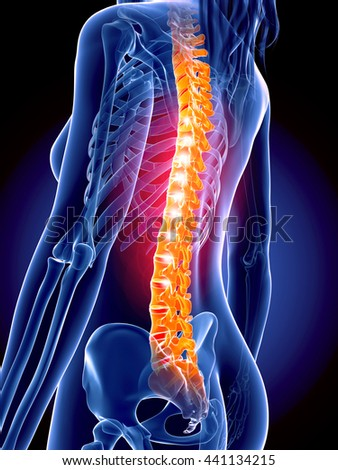 3d rendered, medically accurate 3d illustration of the painful spine - stock photo
