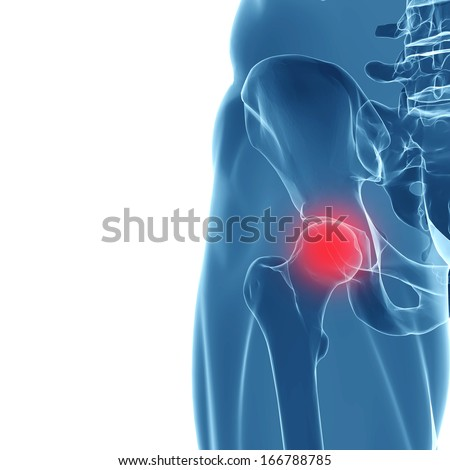 3d rendering of human hip joint. X-Ray  - stock photo