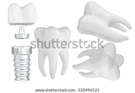 3D tooth imlant pin isolated white - stock photo