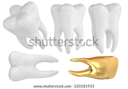 3D tooth implant isolated white - stock photo