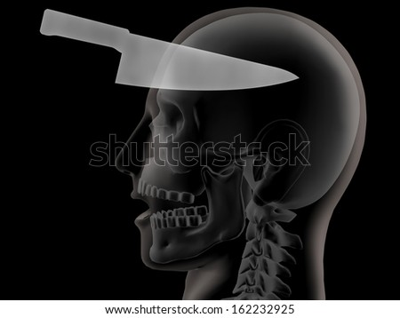 3d x-ray of human head shows knife embedded in head - stock photo