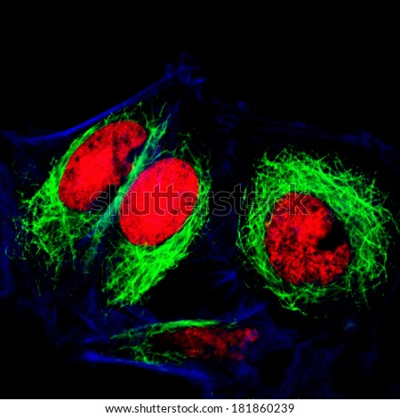 Epithelial tumor cells labeled with fluorescent molecules - stock photo