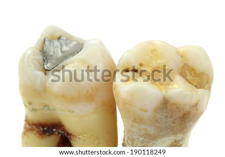 Extracted teeth with details of caries, fillings and tartar, on white background. Macro image. - stock photo