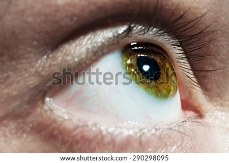 Green men eye with red blood vessels close up - stock photo