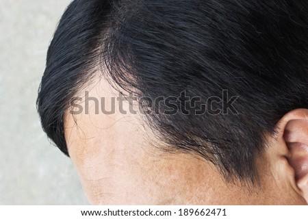 hair loss  - stock photo
